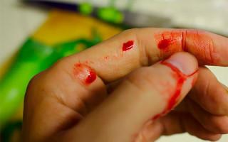 Кровоточит папиллома после удаления или травмы: какие действия предпринять