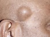 Симптоматика и особенности локализации липомы на голове