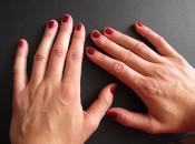 Как навсегда убрать бородавку с пальца руки: обзор аптечных и народных средств