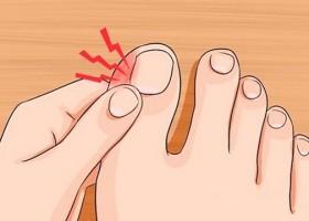 Методы домашнего лечения нарыва, возникшего возле ногтя на пальце ноги