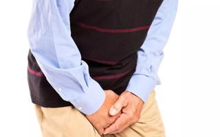 Мужские папилломы на интимных органах: от чего появляются и какие симптомы