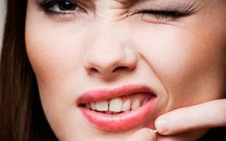 Гнойные высыпания на лице: виды прыщей и причины появления