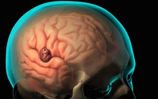 Причины возникновения абсцесса в головном мозге