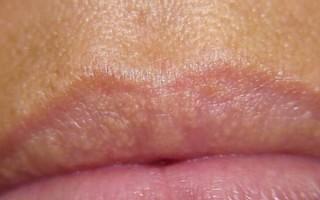 Белая сыпь на губах: почему появляются гранулы Фордайса