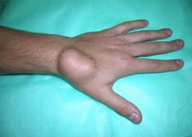 Липома, появившаяся на руке: причины образования и методы устранения