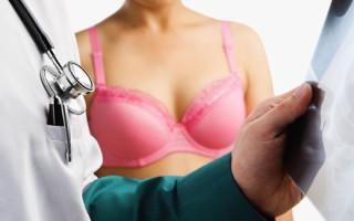 Что такое фибролипома молочной железы и ее лечение