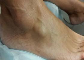 Эффективность домашнего лечения для устранения липомы на ноге