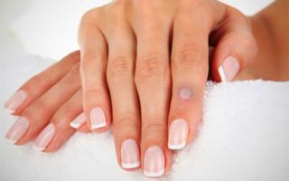 Бородавки на пальце руки: причины появления и методы лечения