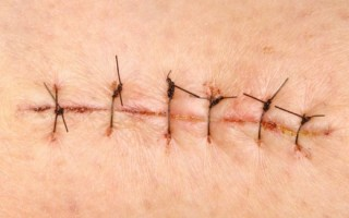 Как определить первые признаки нагноения в послеоперационной ране