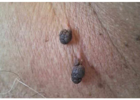 Почему появляются висячие папилломы и как их можно устранить в домашних условиях