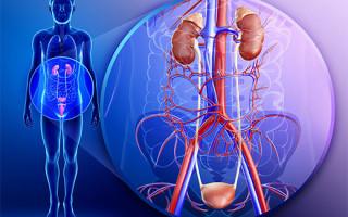 Проявление симптоматики папиллом в мочевом пузыре у мужчин и женщин
