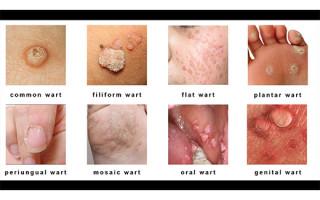 Какие бывают бородавки: обзор основных разновидностей образований на коже