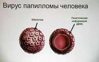 Что такое вирус папилломы человека и как он проявляется