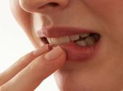 Причины, лечение и особенности локализации бородавок во рту: на языке, губе, горле, десне