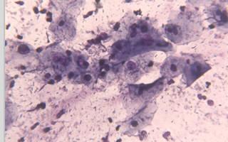Особенности койлоцитарной атипии шейки матки и ее лечение