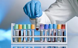 Как берут анализ на ВПЧ у женщин: особенности процедуры и результаты