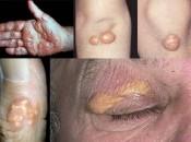 Ксантомы на коже: причины образования и виды