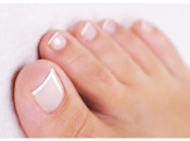 Бородавки между пальцами ног: причины и методы избавления