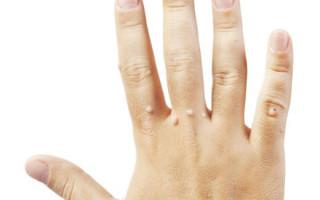 Обзор эффективных методов избавления от бородавок