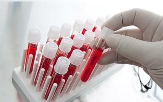 Насколько точным является анализ крови на ВПЧ и особенности его проведения