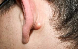 Как избавиться от жировиков на разных участках тела: обзор эффективных методов