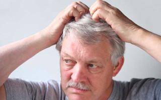 На голове под волосами появились гнойники: что делать