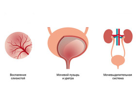 Папилломы в уретре у мужчин и женщин: симптоматика и причины