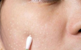 Милиумы на лице: домашние методы избавления от просянки