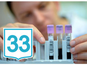 Опасен ли ВПЧ 33 типа для мужчин, особенности лечения вируса