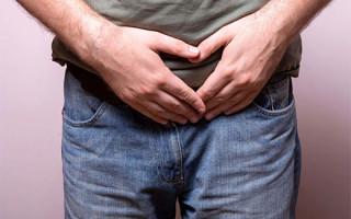 Как лечить вирус папилломы у мужчин: обзор методов и средств