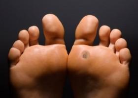 Причины появления шипицы на ногах и особенности нароста