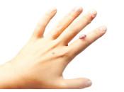 Почему появляются папилломы на руках: диагностика и локализация