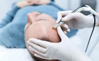 Методика удаления бородавок и папиллом аппаратом Сургитрон
