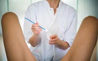 Как проводится мазок (соскоб) ВПЧ у женщин и расшифровка результатов