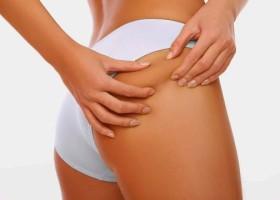 Жировик на ягодицах: симптоматика и безопасные способы удаления