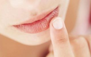 Точки на губах белого цвета: норма или симптом заболевания