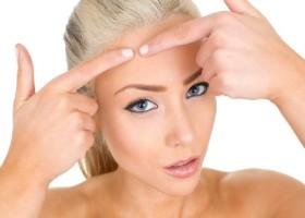 Как устранить липому на лице: обзор средств для домашнего применения