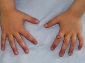Почему у ребенка появились папилломы: причины образования