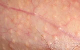 Белая сыпь на половом члене: опасны ли гранулы Фордайса