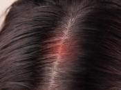Причины появления фурункула на голове и его лечение