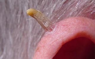 Старческие бородавки (возрастные кератомы): особенности, виды и методы лечения