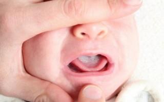 Опасно ли появление белых точек на десне у новорожденного