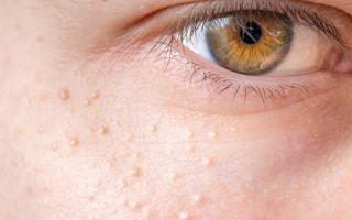 Причины появления белых точек под глазами: опасны ли они