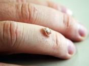 Шипица на пальце на руке: как лечить в домашних условиях