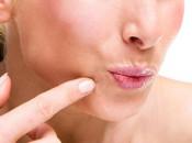Как избавиться от плоских бородавок на лице: обзор методов лечения и удаления