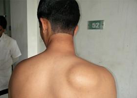 Как удалить липому на спину: обзор методов