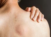 Липома с локализацией на плече: особенности и методы устранения