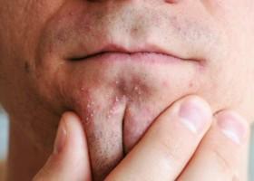 Домашние методы избавления от белых угрей на лице