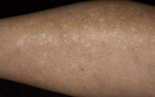 Причины появления белых точек на ногах