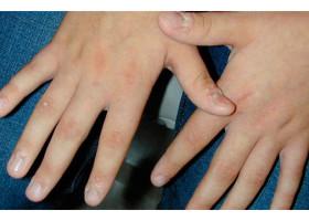 Причины появления бородавок на пальцах рук